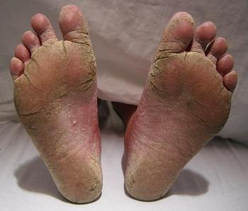 foot3501